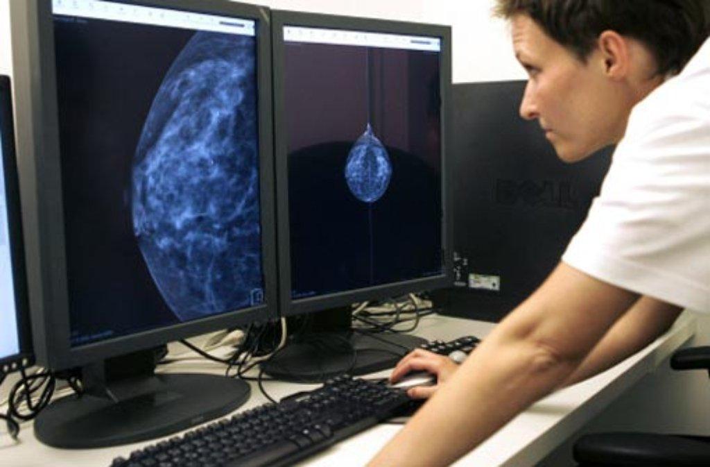 Anders als beim bloßen Abtasten der Brust können Ärzte bei einer Mammografie auch kleinere Knoten erkennen. Foto: dpa