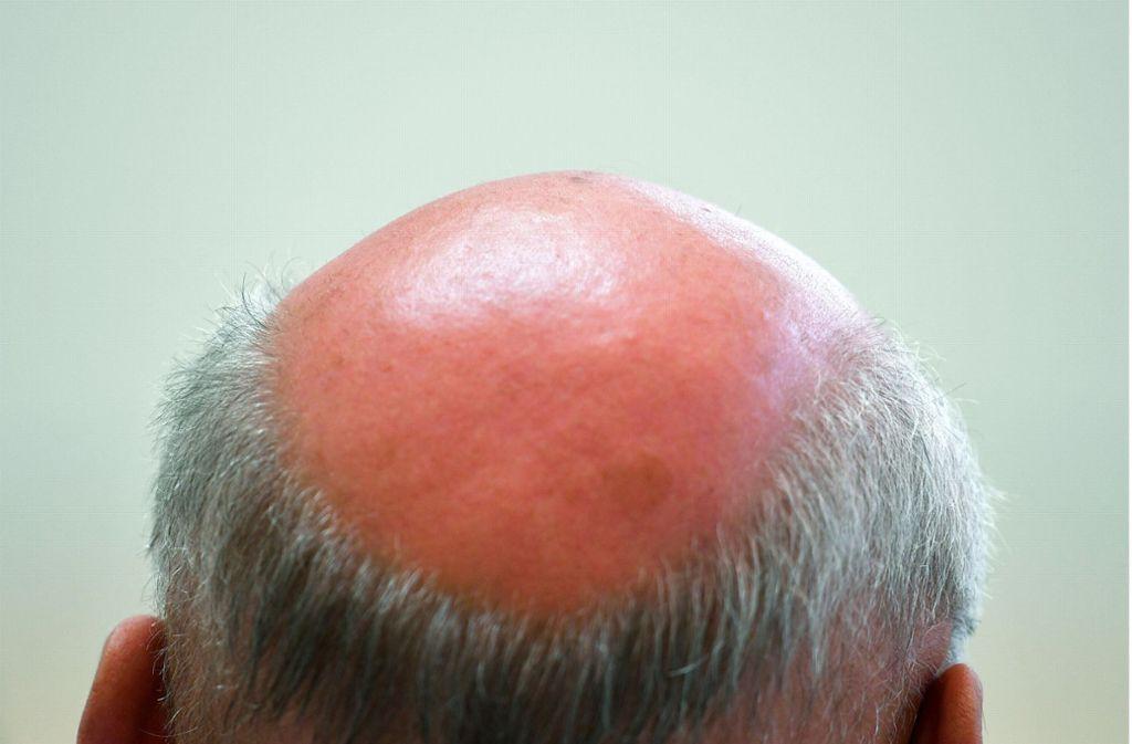Die Haarwuchspillen hätten gravierende Nebenwirkungen ausgelöst. (Symbolbild) Foto: dpa