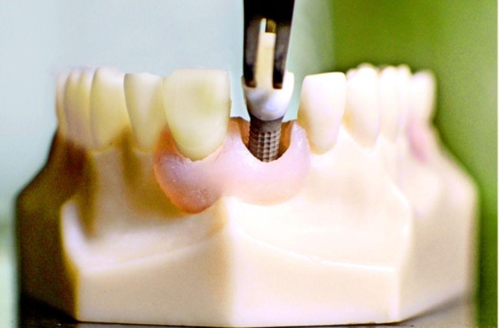 Etwa eine Millionen Mal im Jahr werden künstliche Zahnwurzeln implantiert. Foto: dpa