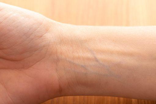 Bild von Adern, die blau durch die Haut schimmern.