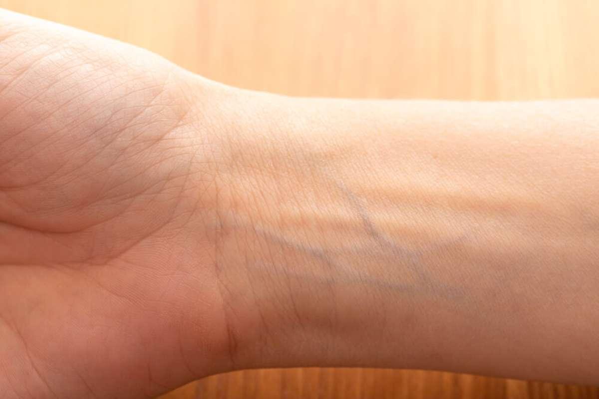 Darum erscheinen die Adern blau. Foto: sruilk / shutterstock.com