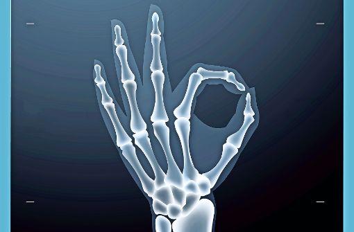 Röntgenbilder  erlauben  genauere Diagnosen. Trotzdem sollte man Nutzen und Risiken abwägen. Foto: Fotolia