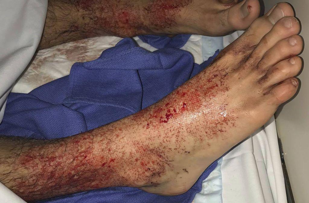Mysteriöse Meereskreaturen haben einem Teenager in Australien die Füße blutig gebissen und Meeresbiologen damit vor ein Rätsel gestellt. Foto: AP