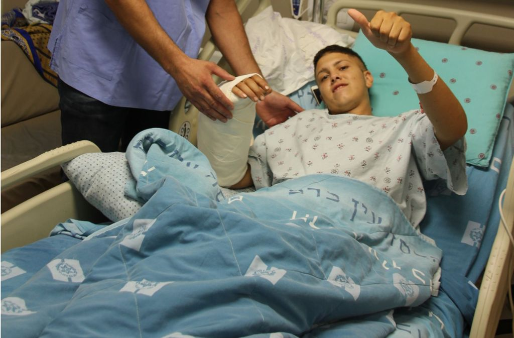 Israelische Ärzte haben einem 20-Jährigen einen Arm wieder angenäht, den er sich selbst bei einem Unfall mit einer Kreissäge abgetrennt hatte. Foto: Jerusalemer Hadassah-Krankenhaus