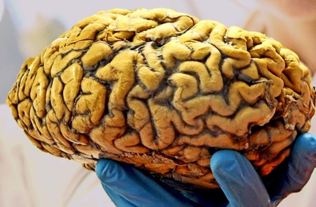 Veränderungen im Gehirn von Dementen können zu einem kriminellen Verhalten führen. Foto: