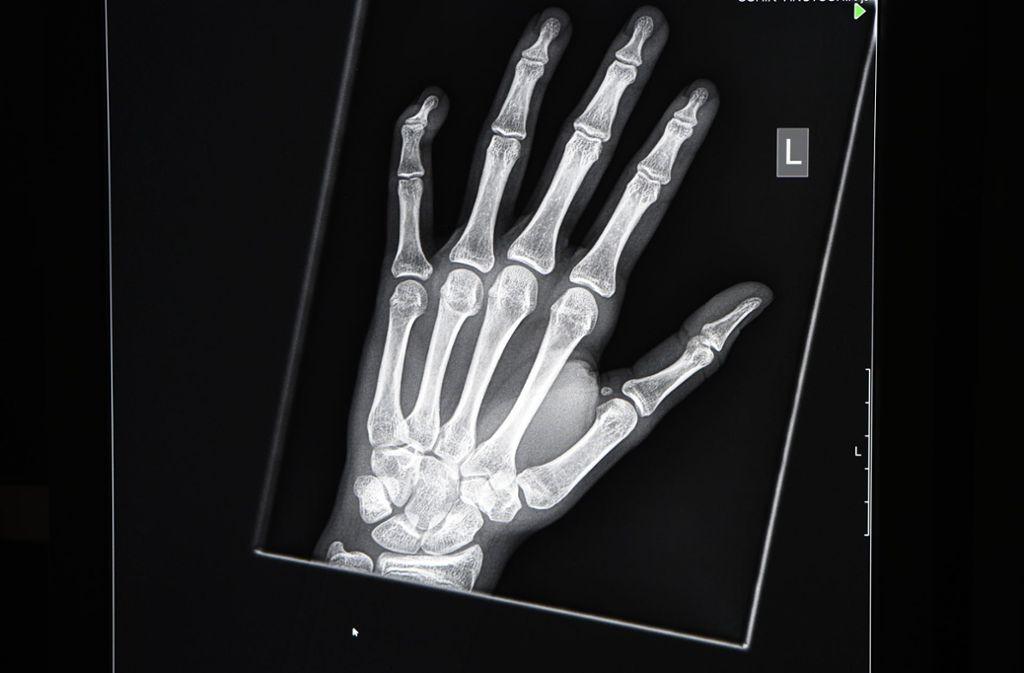 Röntgenaufnahmen von der Hand sollen dabei helfen, das Alter eines Menschen festzustellen. Foto: dpa