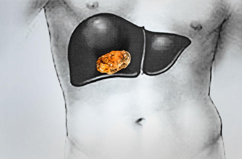 Gallensteine entstehen in der Gallenblase, die sich direkt neben der Leber befindet. Foto: eleonimages - stock.adobe.com
