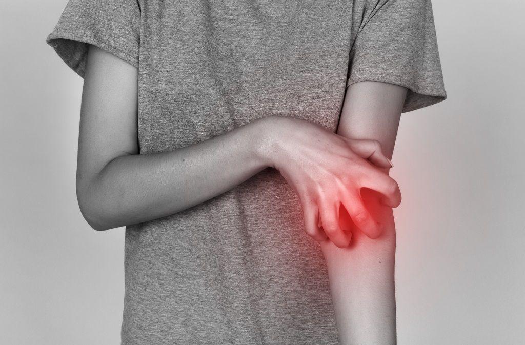 Hautkrankheit Krätze: Symptome, Ursachen, Behandlung Foto: Mykola Samoilenko / Shutterstock