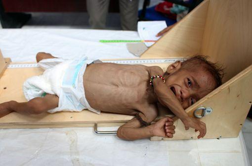 Verhungernde Kinder im Bürgerkriegsland