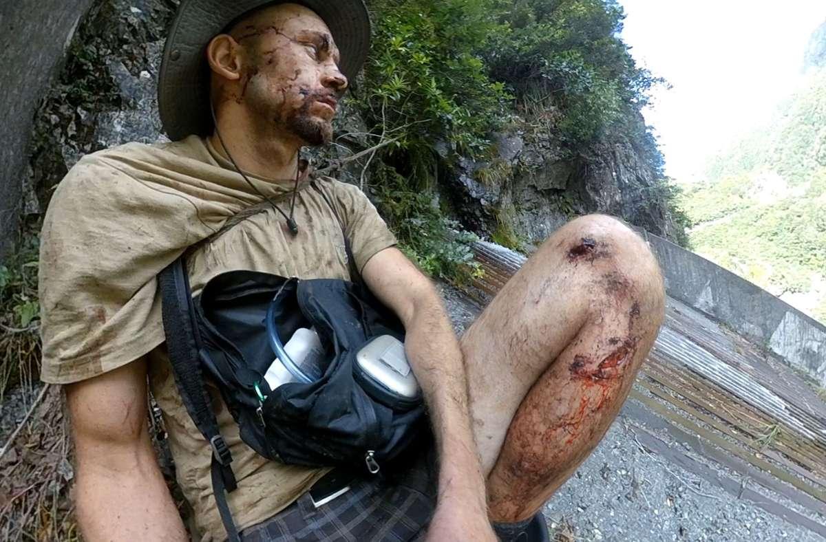 Johannes Helmel hat sich nach seinem Unfall   selbst fotografiert. Foto: privat